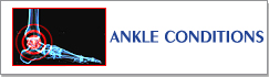 Ankle Conditions Information - Birmingham Orthopaedic Foot and Ankle Clinic