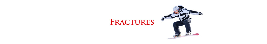 Birmingham Orthopedic Foot and Ankle Clinic - Calcaneal Fractures